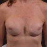 Breast Revision - Case #47 Before