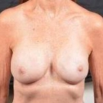 Breast Revision - Case #47 After