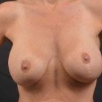 Breast Revision - Case #46 Before