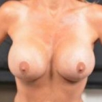 Breast Revision - Case #46 After