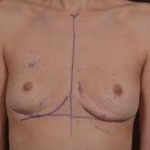 Breast Revision - Case #44 Before