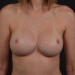 Breast Revision - Case #44 After