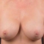 Breast Augmentation Mastopexy  Revision - Case #30 Before