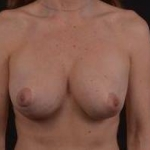 Breast Revision - Case #43 Before