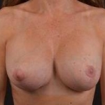 Breast Revision - Case #43 After
