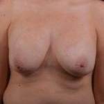 Breast Revision - Case #42 Before
