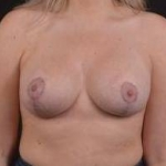 Breast Revision - Case #42 After