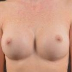 Breast Revision - Case #41 Before