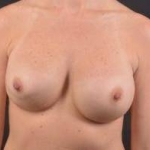 Breast Revision - Case #40 Before
