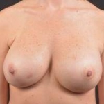 Breast Revision - Case #40 After