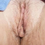 Labiaplasty - Case 4 Before