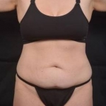Abdominoplasty - Case #49 Before