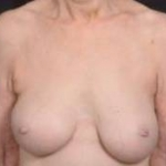 Breast Augmentation Mastopexy Revision - Case #39 Before