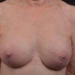 Breast Augmentation Mastopexy Revision - Case #39 After
