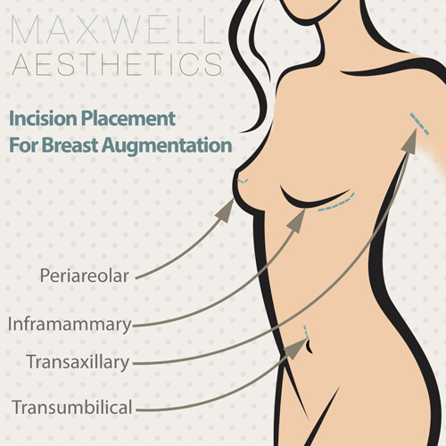 Breast augmentation at our Nashville, TN, practice can involve one of four incision locations: periareolar, transaxillary, transumbilical, or inframammary.